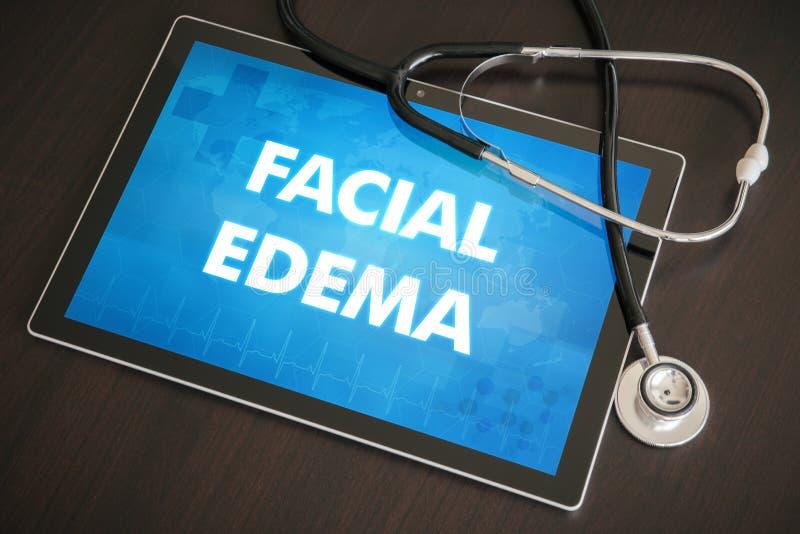 Conceito médico do diagnóstico facial do edema (doença cutâneo) em Ta imagem de stock