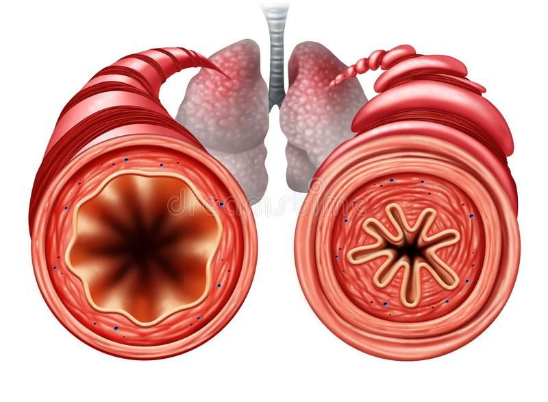 Conceito médico do diagrama da asma ilustração royalty free