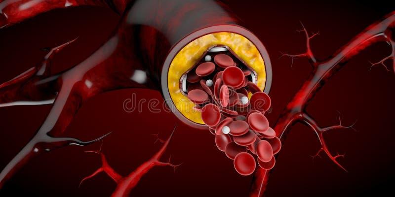 Conceito médico do implante do Stent como uma ilustração do símbolo 3D do tratamento da doença cardíaca ilustração royalty free