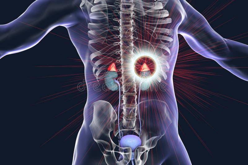 Concept adrénal de traitement de pathologie illustration libre de droits