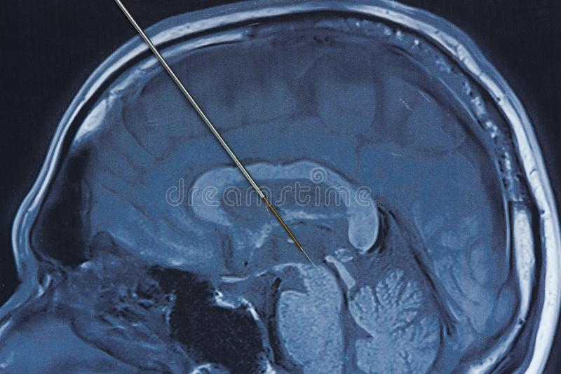 Concept of brain recording for parkinson surgery. Concept of brain recording at subthalamic nucleus in parkinson surgery. Microelectrode recording on magnetic royalty free stock image