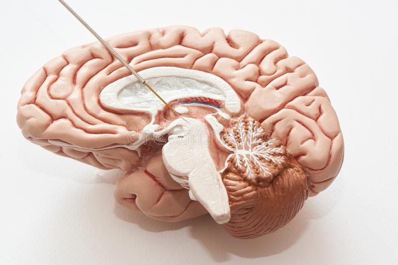 Concept of brain recording in subthalamic nucleus for Parkinson disease surgery. Miicroelectrode recording on the brain model. Concept of brain recording in stock image
