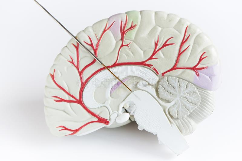 Concept of brain wave recording in Parkinson disease surgery. Microelectrode recording in midbrain. Brain model on white background royalty free stock photos