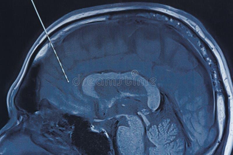 Depth electrode on brain MRI imaging. Concept of brain wave recording using depth electrode in epilepsy surgery. Depth electrode on brain MRI imaging royalty free stock image
