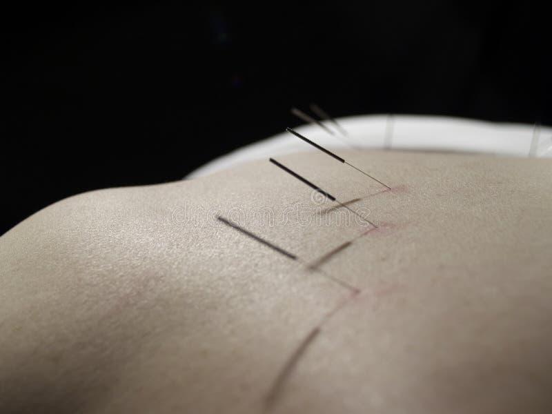 Concept d'acuponcture photos libres de droits