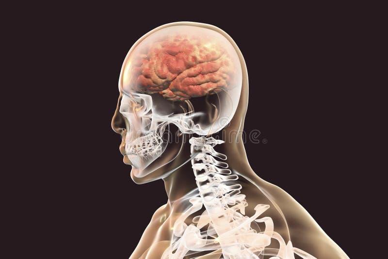Concept d'encéphalite, illustration montrant l'oedème et les hémorragies dans le cerveau illustration de vecteur
