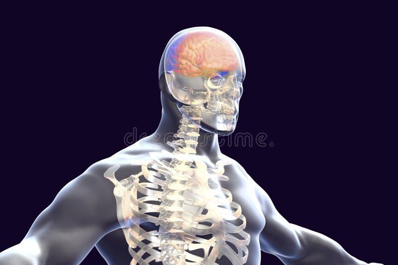 Concept d'encéphalite, illustration montrant l'oedème et les hémorragies dans le cerveau illustration stock