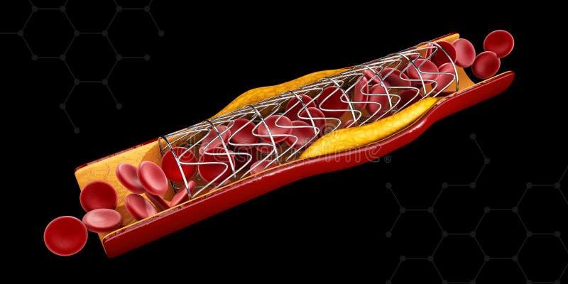 Concept d'implant de Stent comme traitement de maladie cardiaque Illustration illustration de vecteur