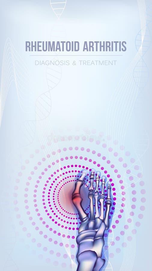 Concept d'os de rhumatisme articulaire illustration libre de droits