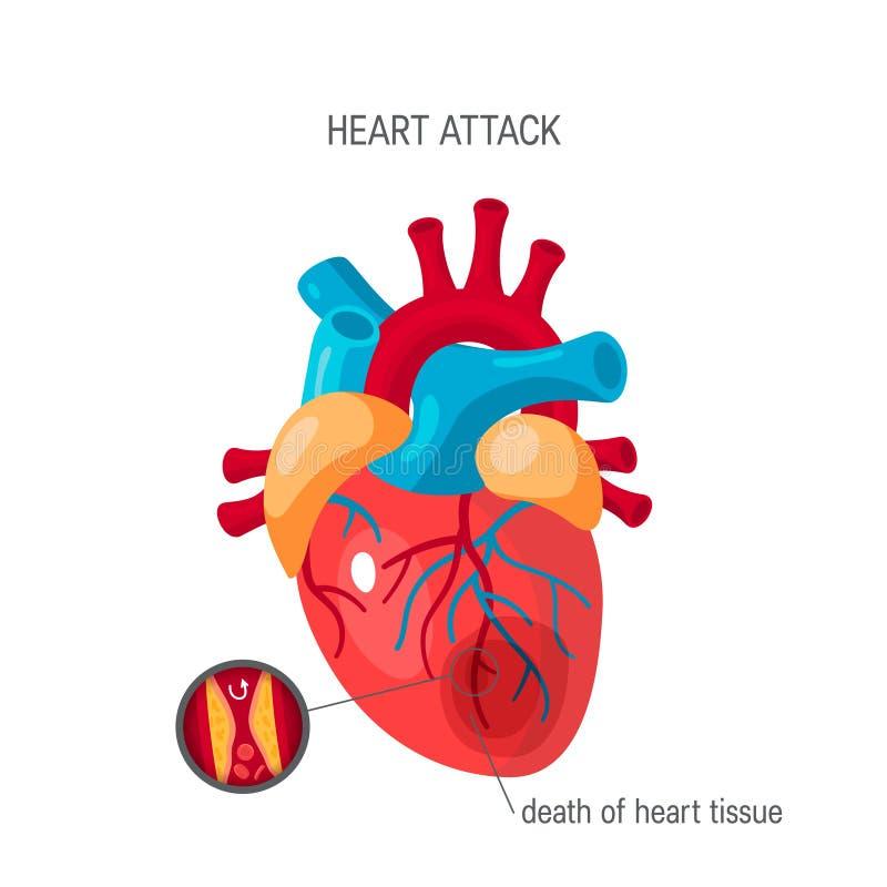 Concept de crise cardiaque dans le style plat, vecteur illustration stock