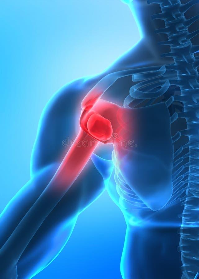 Concept de douleur de bras photographie stock libre de droits