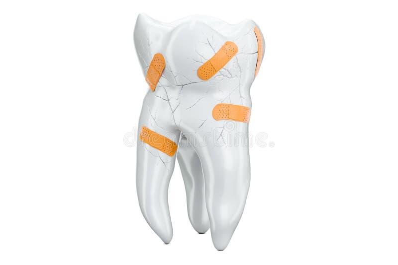 Concept dentaire de récupération, rendu 3D illustration stock