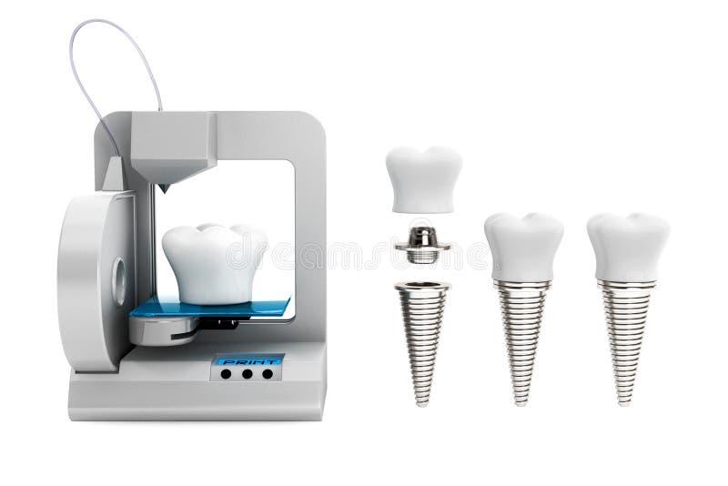 Concept dentaire de technologie implant de dent d'impression de l'imprimante 3d illustration stock