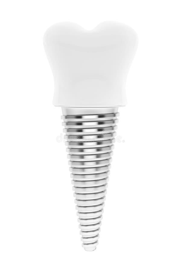 Concept dentaire. Implant de dent image stock