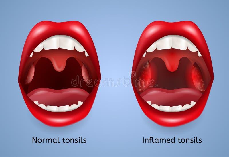 Concept infecté de vecteur d'inflammation d'amygdales illustration de vecteur