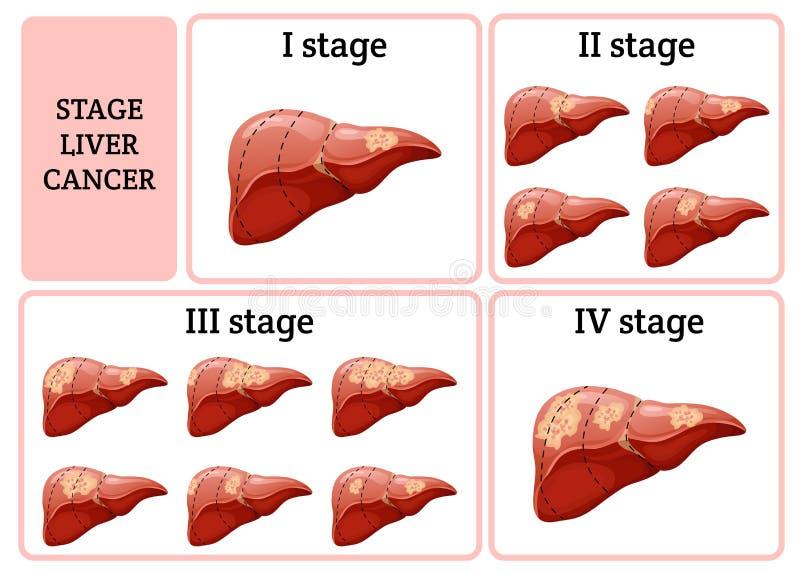 Concept interne de la maladie d'organe humain de bande dessinée illustration stock