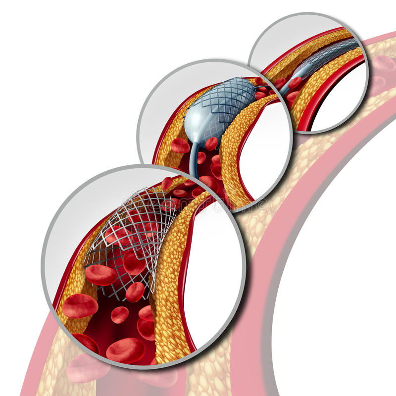 Concept médical coronaire de Stent illustration stock