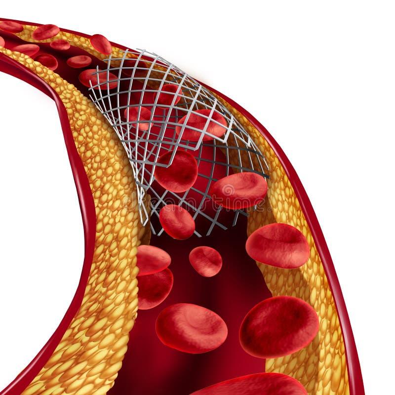 Concept médical d'implant de Stent illustration stock