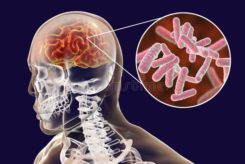 Concept médical d'infection bactérienne de cerveau, méningite, encéphalite illustration stock