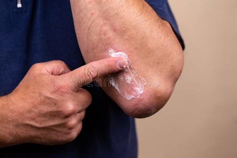 Concept photo of treatment of skin diseases using ointments as dosage form of drug. Patient causes medical therapeutic ointment. Thick consistency or cream stock photo