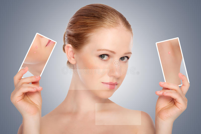 Concept skincare . Skin of beauty young woman with acne royalty free stock photography