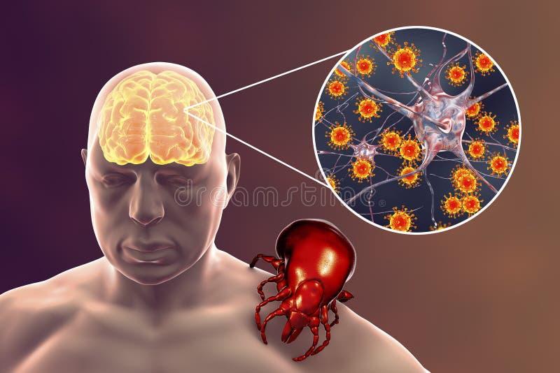 Concept transmis par morsure de tique d'encéphalite illustration de vecteur