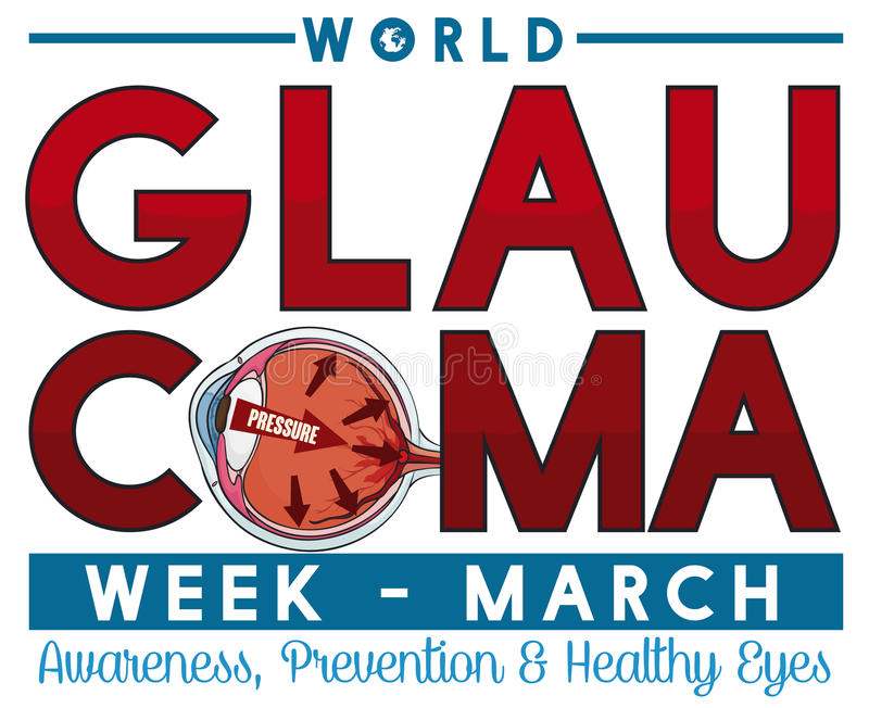 Conception commémorative pour la semaine de glaucome en mars avec l'oeil malade, illustration de vecteur illustration libre de droits