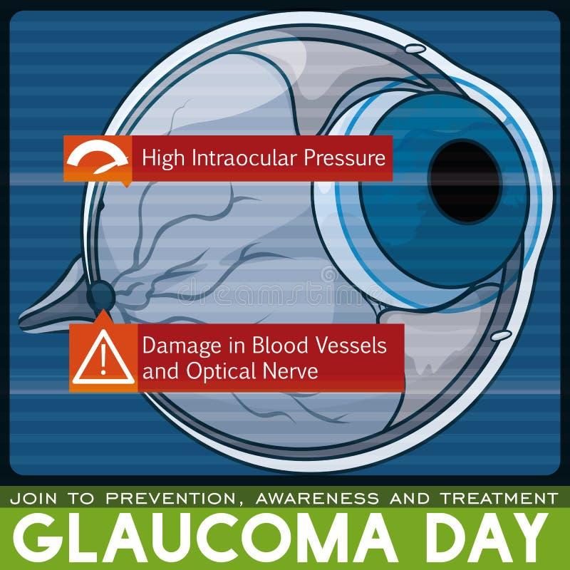 Conception de jour de glaucome : Balayage en difficulté d'oeil dû à cette maladie, illustration de vecteur illustration stock