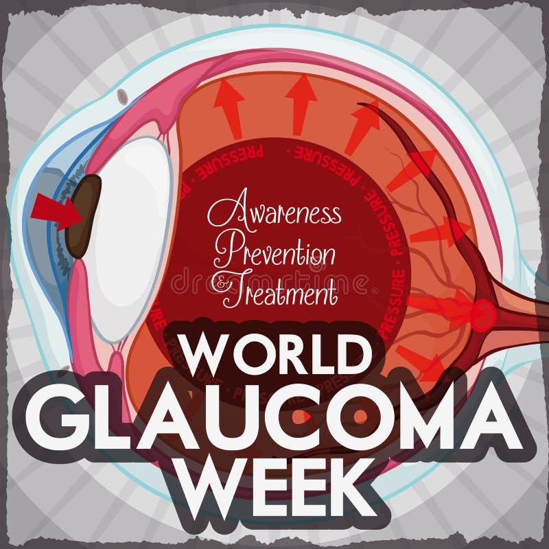 Conception de semaine de glaucome avec l'oeil affecté pour la pression intraoculaire élevée, illustration de vecteur illustration de vecteur