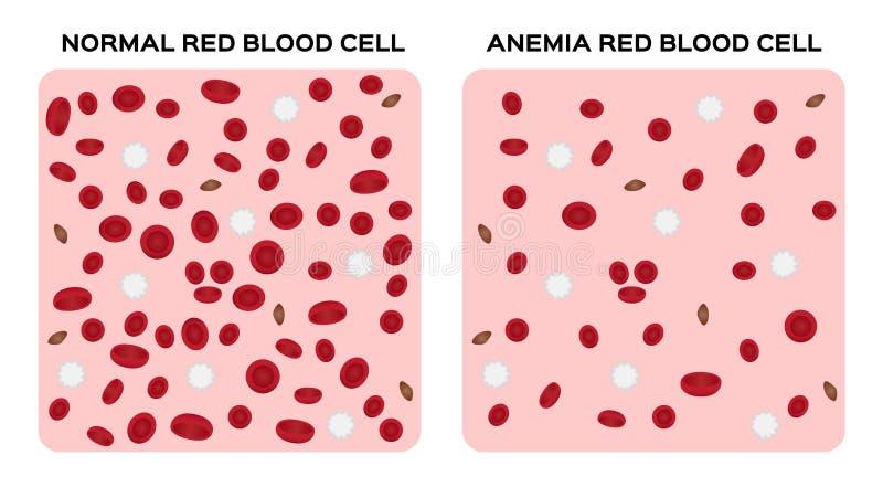 Concepto De La Anatomía De La Anemia/de La Sangre Stock de ...