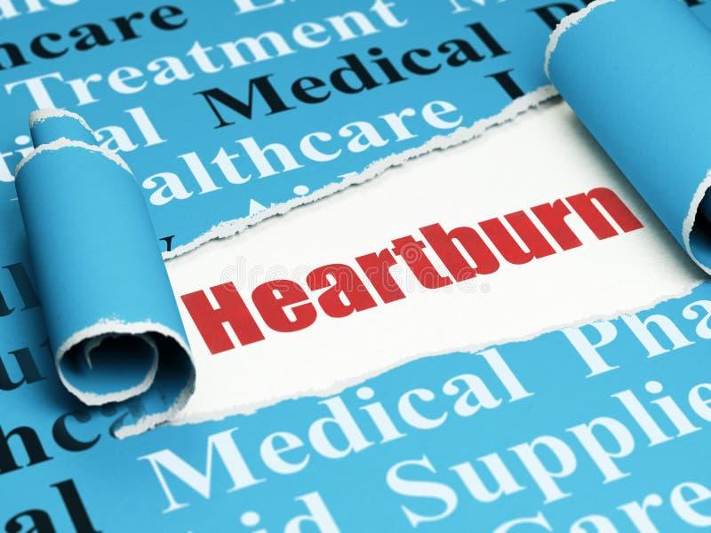Concepto de la atención sanitaria: ardor de estómago rojo del texto bajo pedazo de papel rasgado stock de ilustración