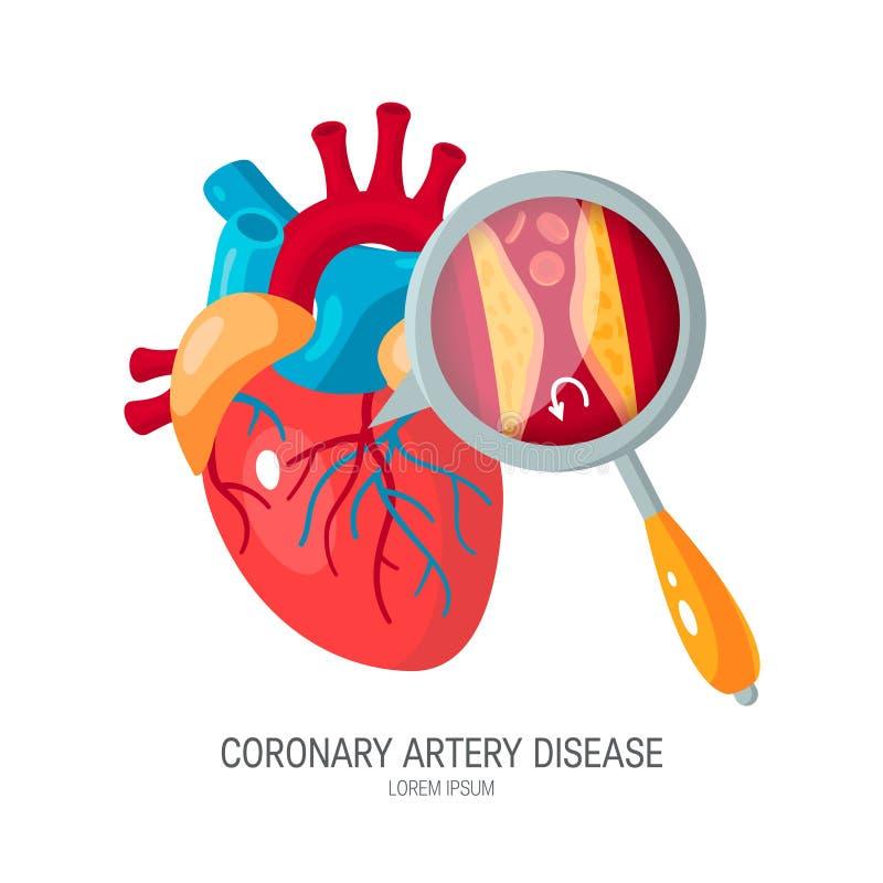 Concepto de la enfermedad de la arteria coronaria en estilo plano ilustración del vector