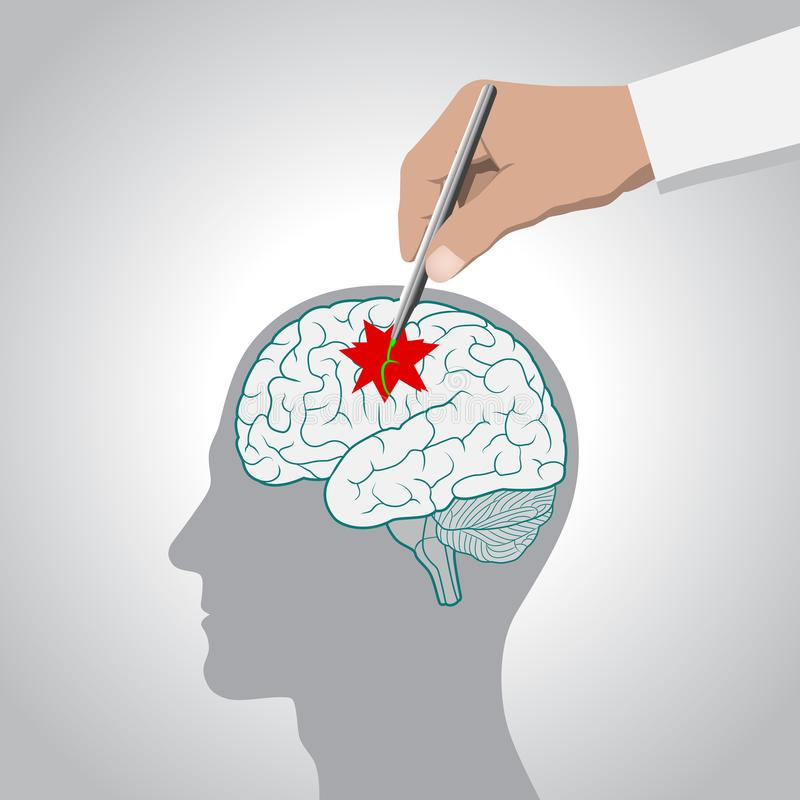 Concepto de recuperación del cerebro, memoria, movimiento, tratamiento de las enfermedades de cerebro ilustración del vector