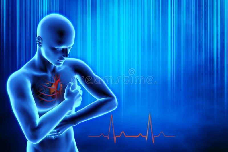 Concepto del ataque del corazón ilustración del vector
