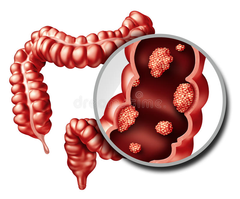 Concepto del cáncer de colon stock de ilustración