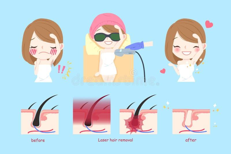 Concepto del pelo de axila del laser stock de ilustración