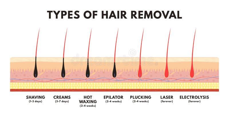 Concepto del retiro del pelo El afeitar, crema de la depilación, el encerar, epilator, desplume, retiro del pelo del laser y elec stock de ilustración