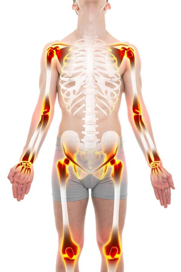 Concepto del varón de la anatomía del dolor de juntas de la artritis fotos de archivo