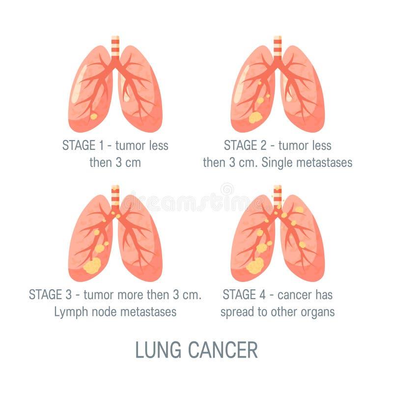 Concepto del vector del cáncer de pulmón en estilo plano libre illustration
