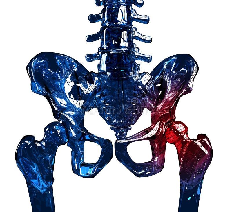 Concepto esquelético del dolor de la cadera 3D imagenes de archivo