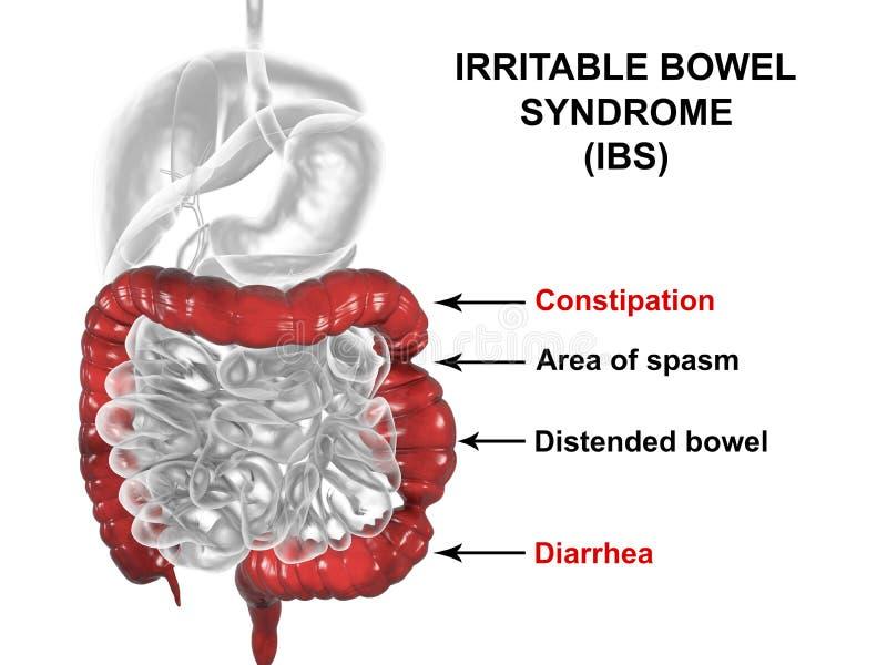 Concepto médico irritable del síndrome de intestino IBS stock de ilustración