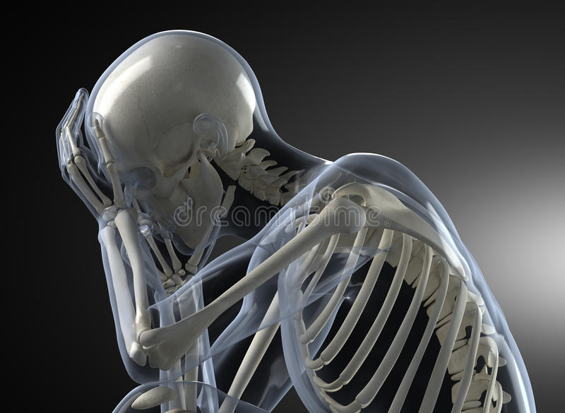 Concepto principal de la radiografía del dolor ilustración del vector