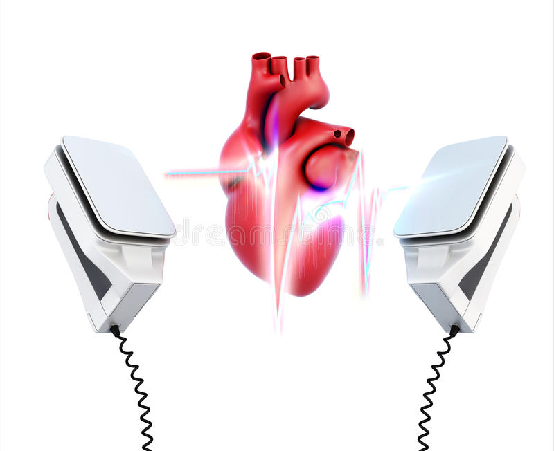 Conceptual image of the model heart and the discharge of defibrillation on a white background. 3d illustration.  vector illustration