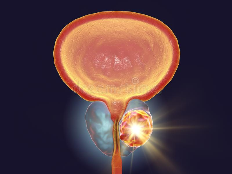 Conceptual image for prostate cancer treatment. 3D illustration showing destruction of a tumor inside prostate gland vector illustration