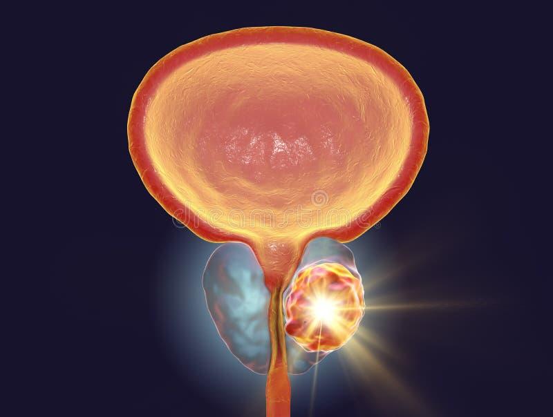 Conceptueel beeld voor prostate kankerbehandeling vector illustratie