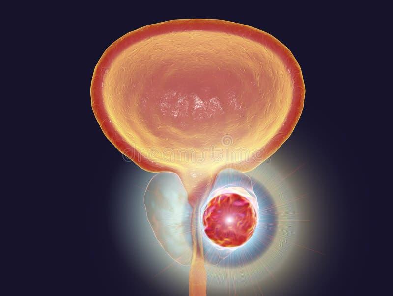 Conceptueel beeld voor prostate kankerbehandeling royalty-vrije illustratie