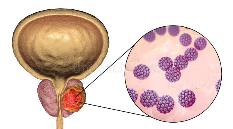 Conceptueel beeld voor virale ethiology van prostate kanker vector illustratie