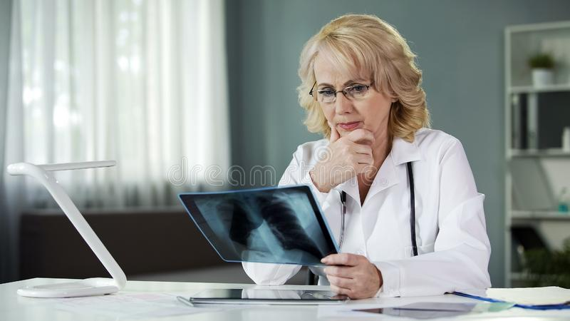 Concerned female pulmonologist examining X-ray of patient's lungs, diagnostics. Stock photo royalty free stock images