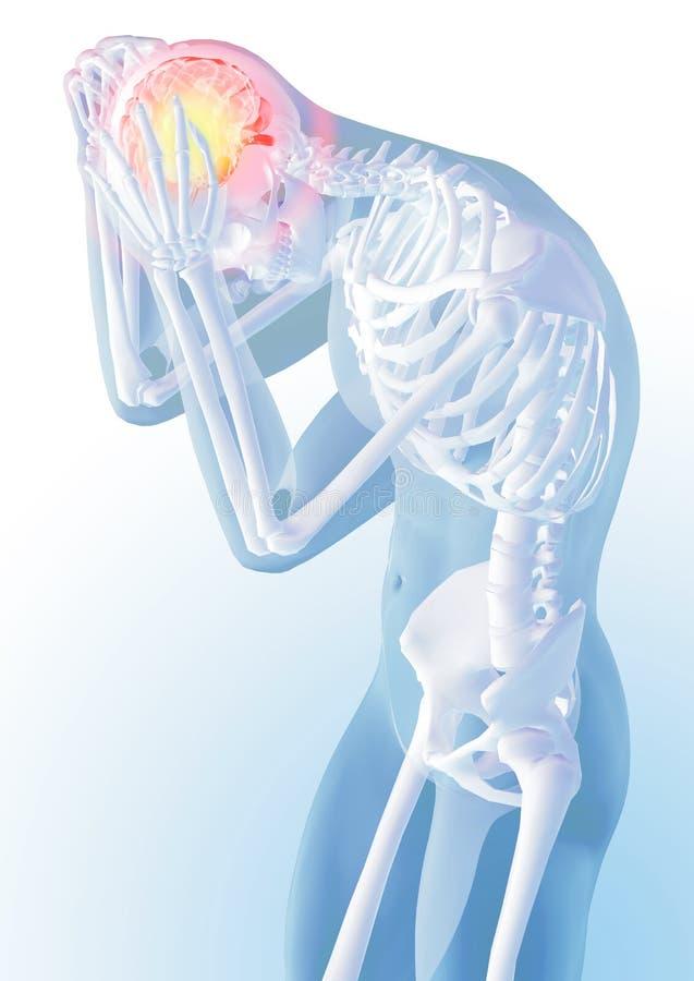 Concetto di dolore capo Trasparenza dello scheletro e del corpo illustrazione anatomica medica 3d illustrazione di stock