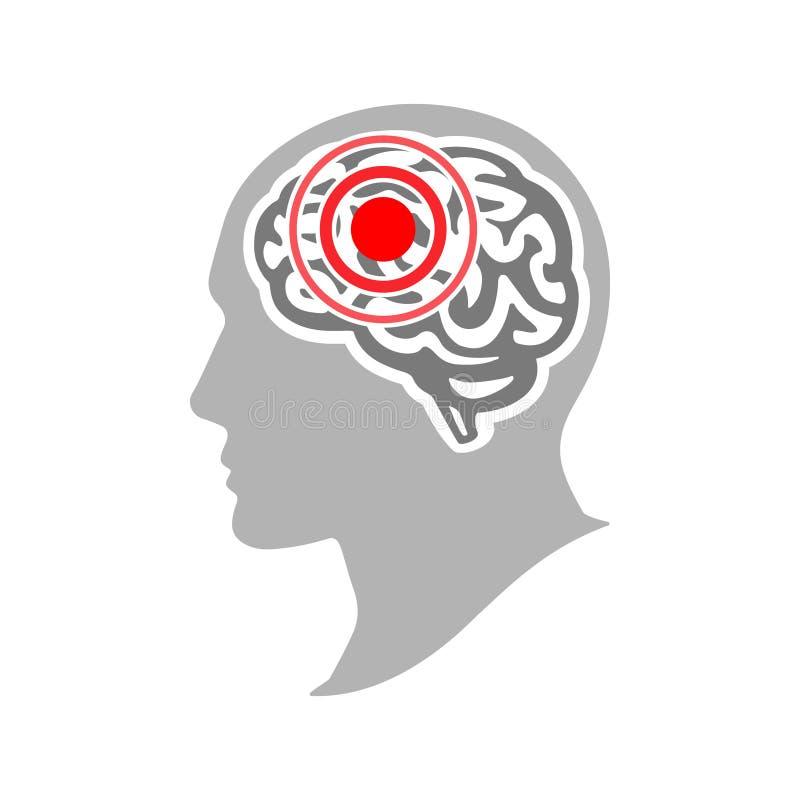 Concetto di emicrania e di emicrania Siluetta di una testa umana con un'emicrania Brain Disease Illustrazione di vettore royalty illustrazione gratis